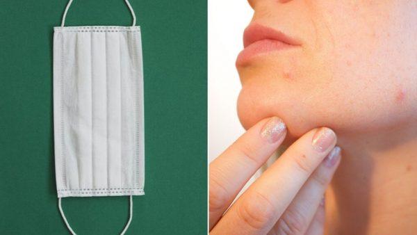 Masken: einige nützliche Tipps zur Vermeidung von Akne und Mitessern